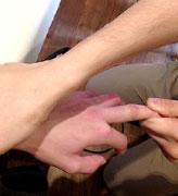 突き指の治療の様子1