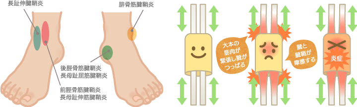 足の腱鞘炎