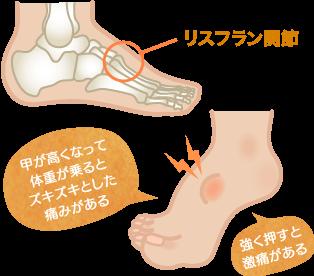 リスフラン関節捻挫の特長・症状