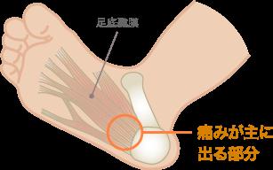 足底腱膜炎の特長・症状