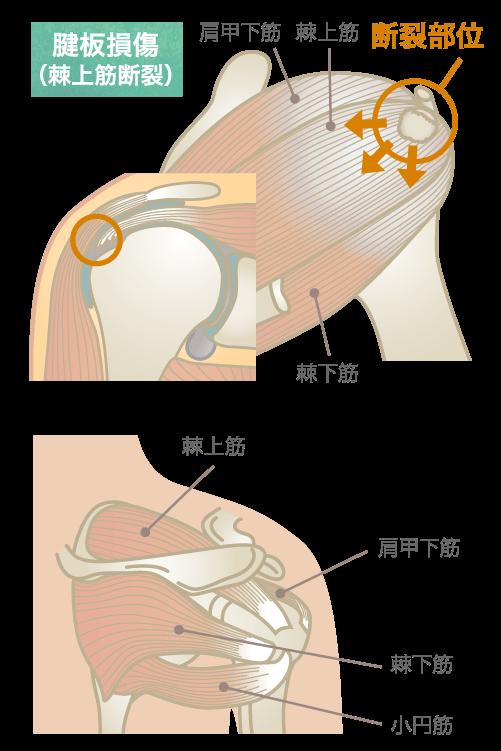腱板損傷(棘上筋断裂)