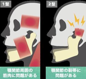 顎関節症1型、顎関節症2型