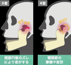 顎関節症3型、顎関節症4型