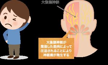 大後頭神経痛(大後頭神経三叉神経症候群)の特長と症状