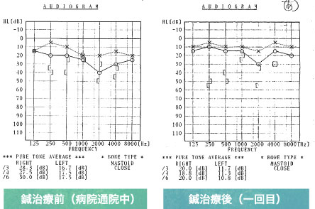 突発性難聴の治療成績一例