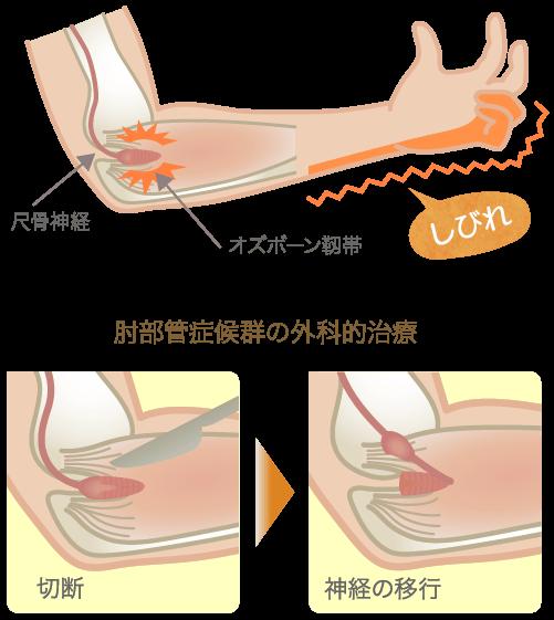 肘部管症候群の原因