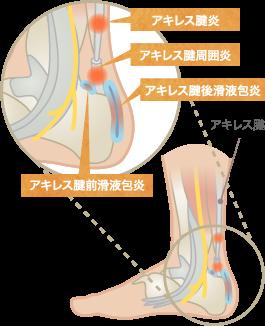 アキレス腱炎・アキレス腱周囲炎・アキレス腱滑液包炎の分類