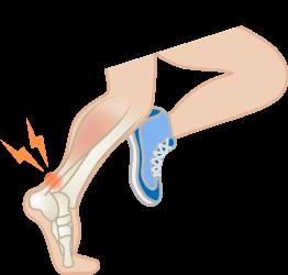 アキレス腱炎・アキレス腱周囲炎・アキレス腱滑液包炎の原因