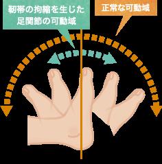 靭帯の拘縮を生じた足関節の可動域