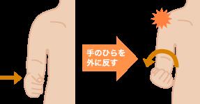 上腕二頭筋長頭腱炎の特長と症状