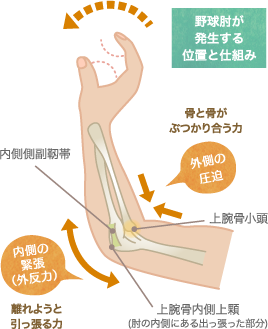 野球肘が発生する位置と仕組み
