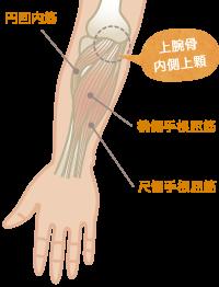 ゴルフ肘(上腕骨内側上顆炎)の特長と症状