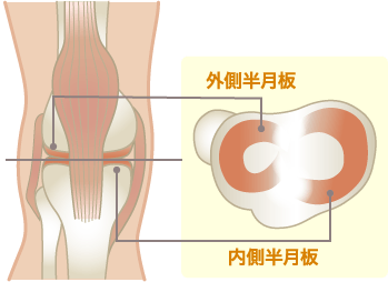 半月板損傷(外側・内側)の原因