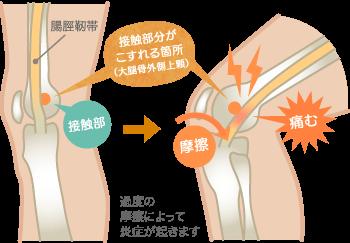 腸脛靭帯炎(ランナー膝)の原因