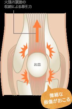 膝蓋靭帯炎の原因
