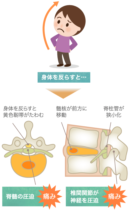 胸椎椎間関節症の特長・症状