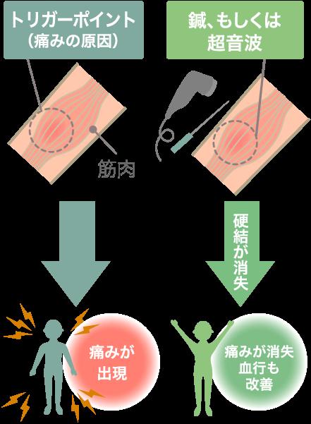 筋・筋膜性腰痛の治療の様子
