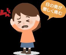 群発性頭痛の特長と症状
