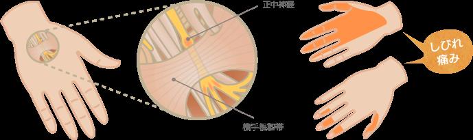 手根管症候群の原因