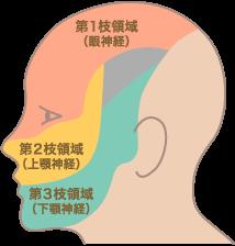 三叉神経痛について