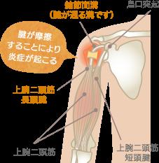 上腕二頭筋長頭腱炎の原因