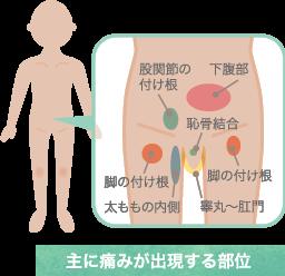 鼠径部痛症候群の特長と症状