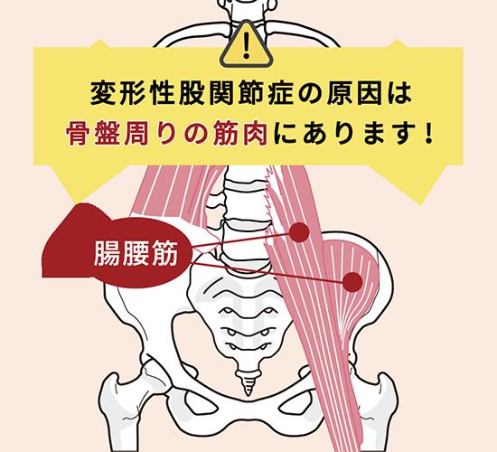 変形性股関節症 発症